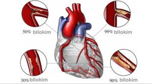 ataku-i-zemres