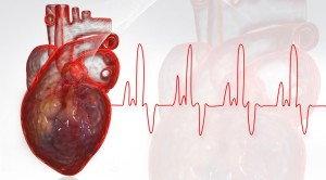 infarkti-i-miokardit