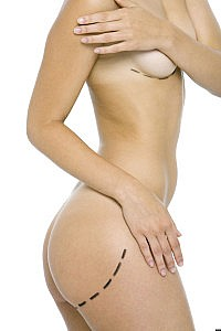 Nude woman with plastic surgery markings on buttocks and breast, side view, cropped